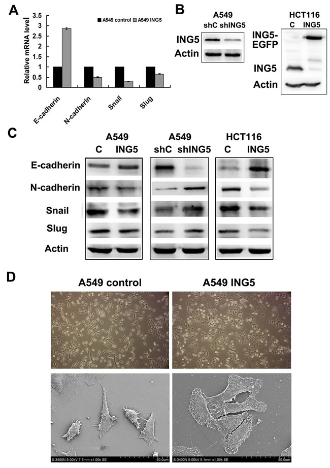 ING5 inhibits expression of EMT markers with morphological changes.