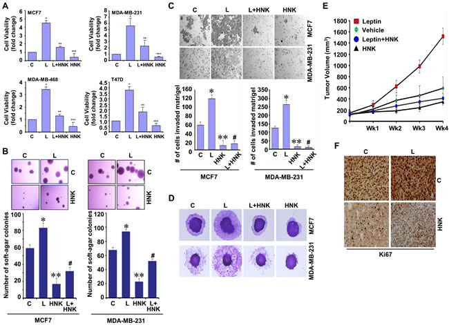 Honokiol diminishes the stimulatory effect of leptin on cell viability, anchorage-independent growth, invasion, migration and breast tumor growth in nude mice.
