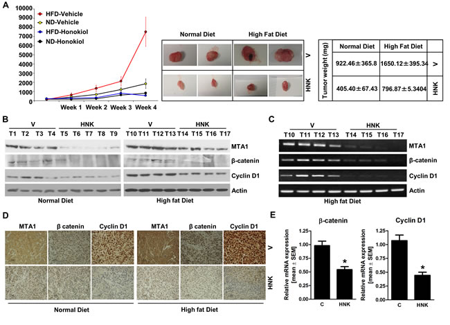HNK treatment inhibits breast tumor growth in obese state, and inhibits MTA1-β-catenin, cyclin D1 axis.