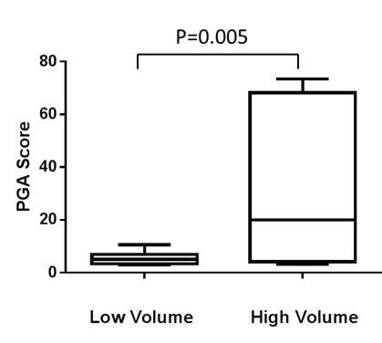 PGA score differences between high and low volume prostate cancer patients (see main text for definition).