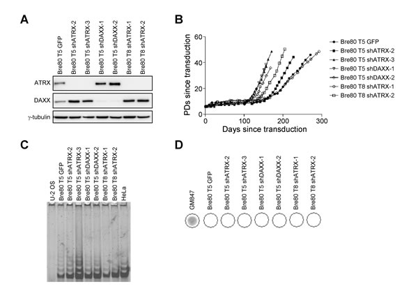 Depletion of ATRX does not induce ALT in epithelial cells.