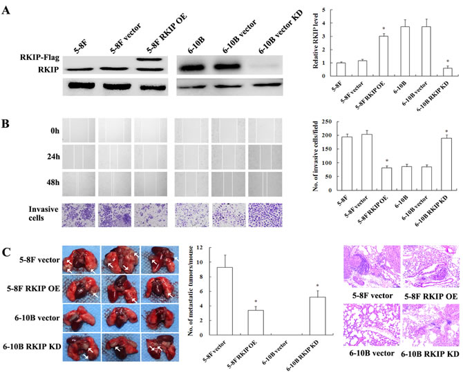 The effects of RKIP expression changes on