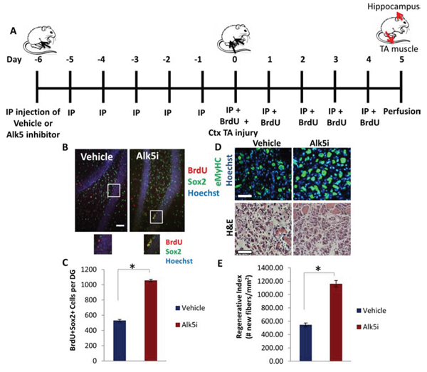 Simultaneous Partial Rescue of Hippocampal Neurogenesis and Myogenesis in Aged Mice through Systemic In vivo inhibition of TGF-β.