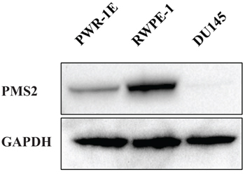 PMS2 expression is downregulated in DU145 PCa cells.