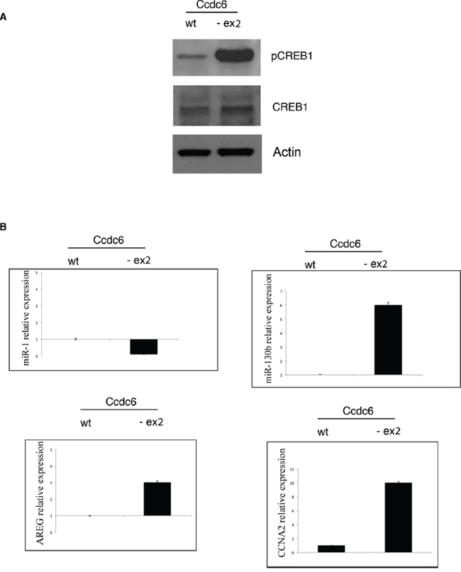 CREB1 transcriptional activity is increased in thyroids of Ccdc6-ex2/-ex2 mice.