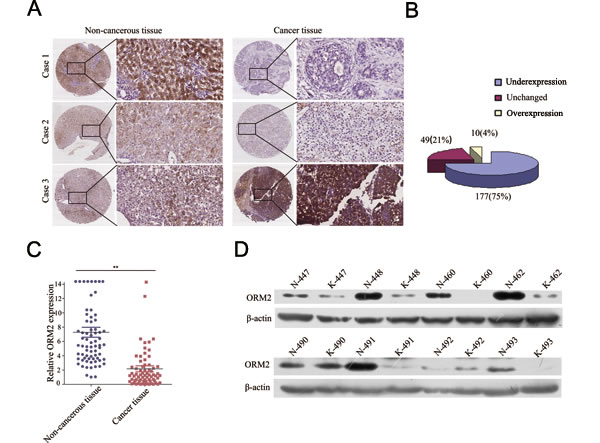 ORM2 was downregulated in HCC tissues and negatively associated with tumor progression and metastasis.