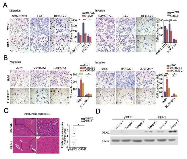 ORM2 inhibited HCC cell migration and invasion