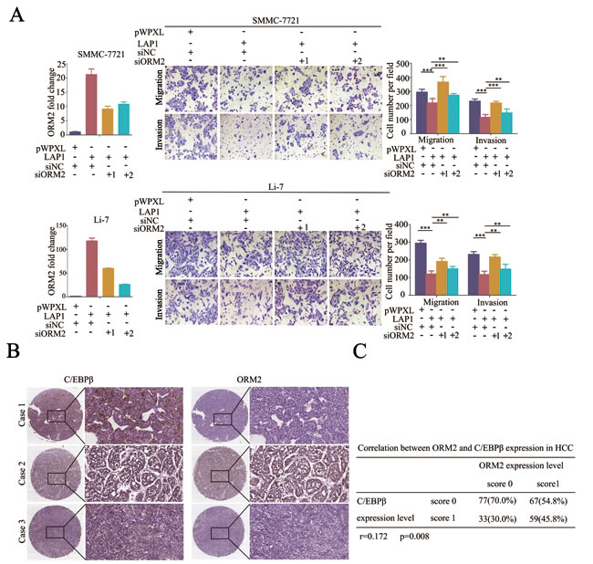LAP1 represses HCC cell migration and invasion by inducing ORM2 expression.