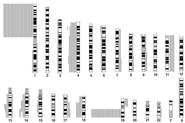 Chromosomal copy number aberrations (CNAs) of oligodendroglial gliomas with total 1p19q loss, as determined by institutional diagnosis.