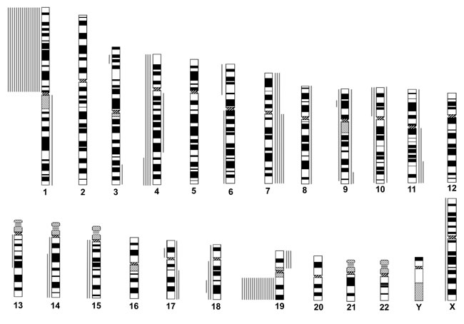 Chromosomal copy number aberrations (CNAs) of astrocytic gliomas with total 1p19q loss, as determined by institutional diagnosis.