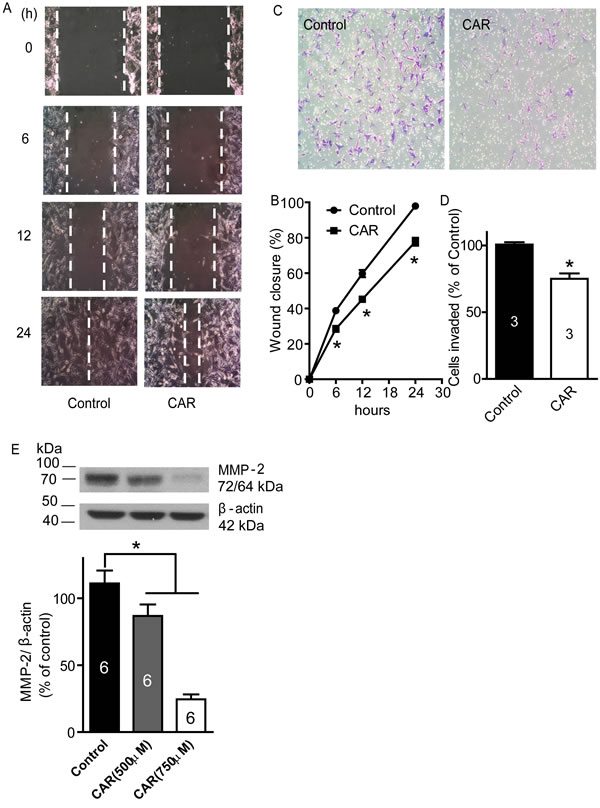 Carvacrol inhibited U87 cell migration, invasion and MMP-2 protein expression.