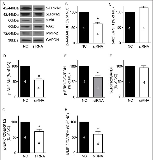 TRPM7 silencing reduced p-Akt, p-ERK1/2 and MMP-2 protein levels in U87 cells.