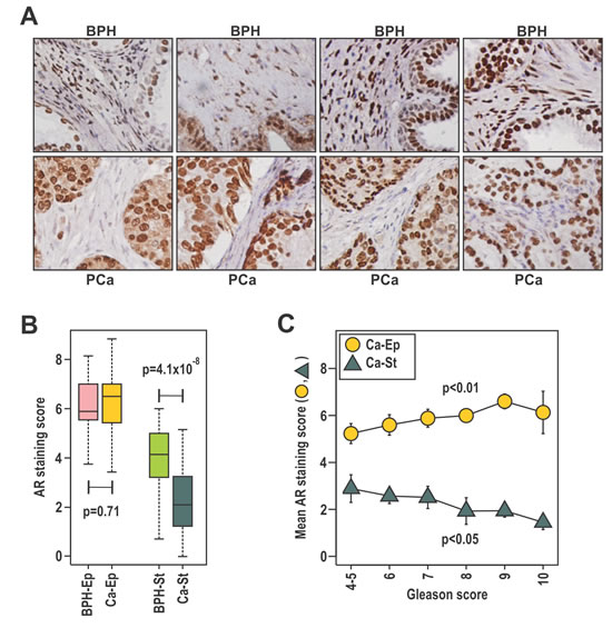 The expression of stromal AR is related to clinical parameters and outcomes of prostate cancer.