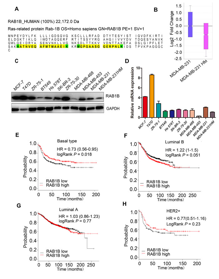 RAB1B is down-regulated in highly metastatic breast cancer cells.