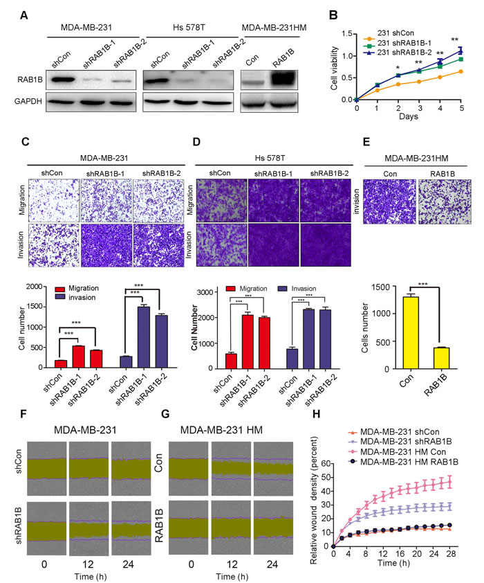 Low RAB1B expression promotes breast cancer metastasis