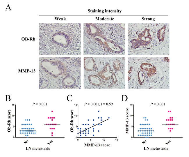 The intratumoral expression of the functional leptin receptor Ob-Rb correlates with the MMP-13 expression and lymph node metastasis in pancreatic cancer patients.