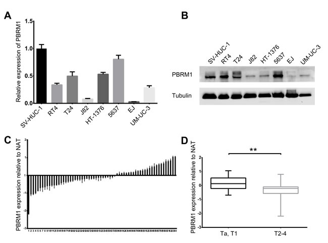 Reduced expression of PBRM1 in human bladder cancer cell lines and tissues.