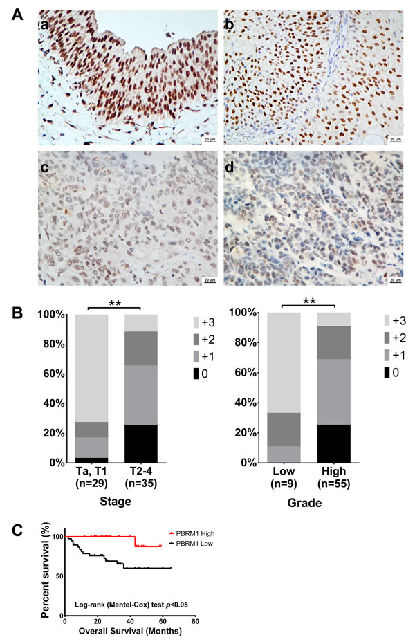 PBRM1 immunohistochemistry of bladder cancer tissue and its association with tumor stage, grade and overall survival.