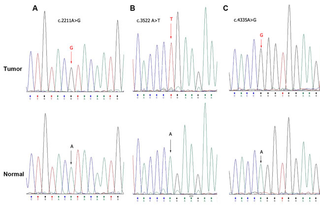 Exome sequencing of PBRM1 by Sanger sequence in bladder cancer tissues.