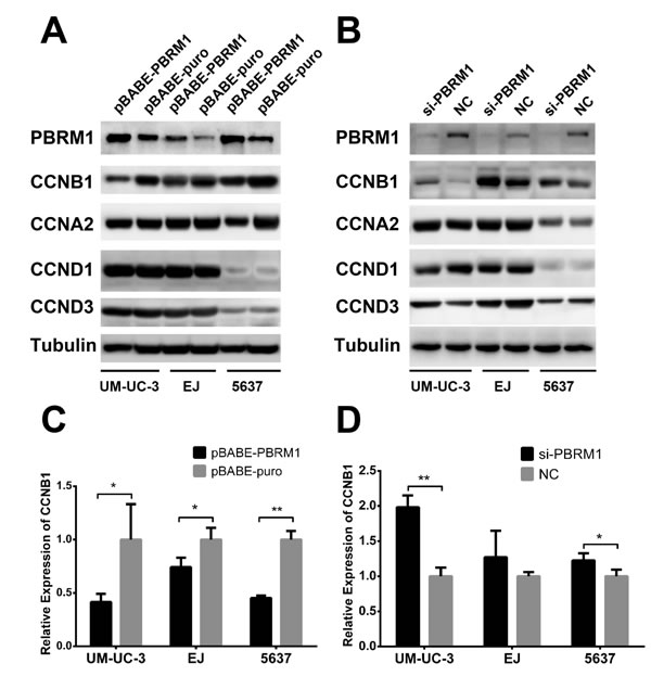 PBRM1 suppresses cyclin B1 expression in bladder cancer cell.