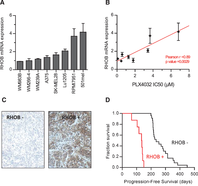 High RHOB expression in melanoma cell lines and patient melanoma biopsies predict low sensitivity to the BRAF inhibitor PLX4032.