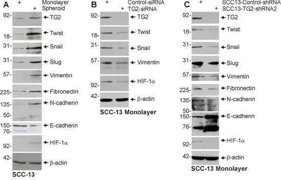 TG2 and EMT marker expression is enriched in ECS cells, and TG2 is required for EMT.
