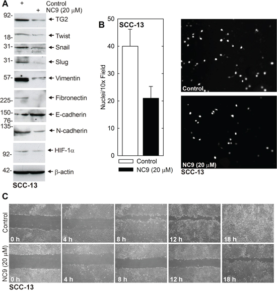 NC9 reduces EMT protein expression and invasion/migration.