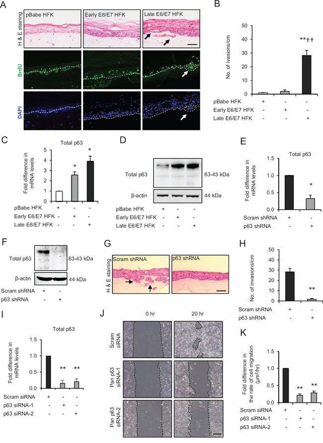 p63 transcription factors drive cell migration and invasion in late passage human foreskin keratinocytes (HFK) expressing human papilloma virus (HPV)16 E6/E7 genes.