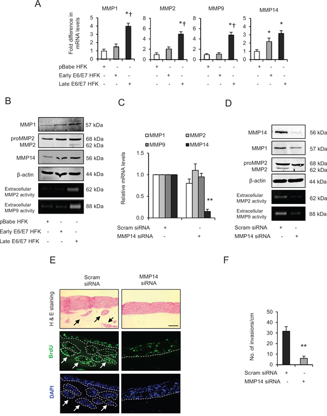 Matrix metalloproteinases (MMP)-mediated extra cellular matrix (ECM) remodelling is important during invasion.