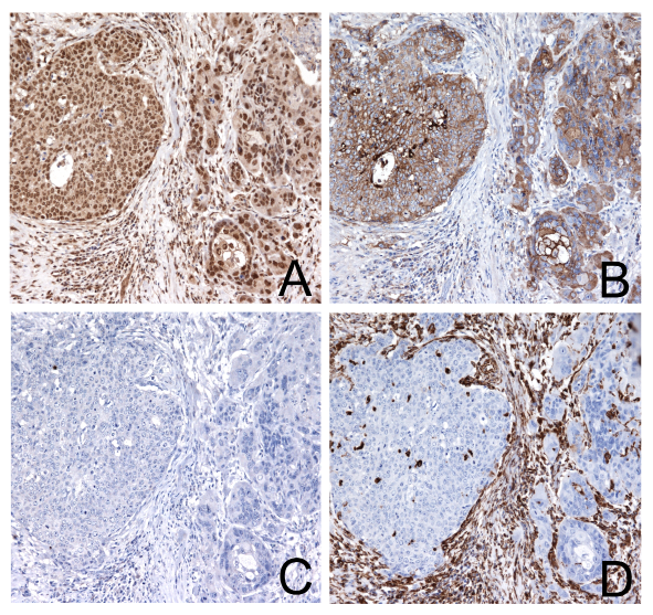 Immunohistochemical staining of a hypopharyngeal squamous cell carcinoma with high TWIST2 expression not associated to EMT.