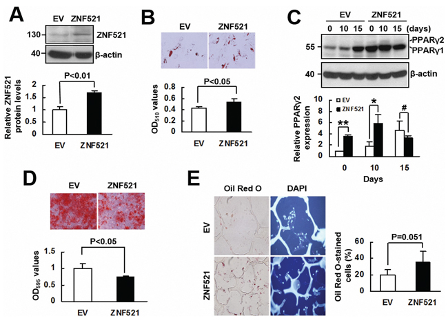 The effect of ZNF521 overexpression to the lineage differentiation of human bmMSCs.