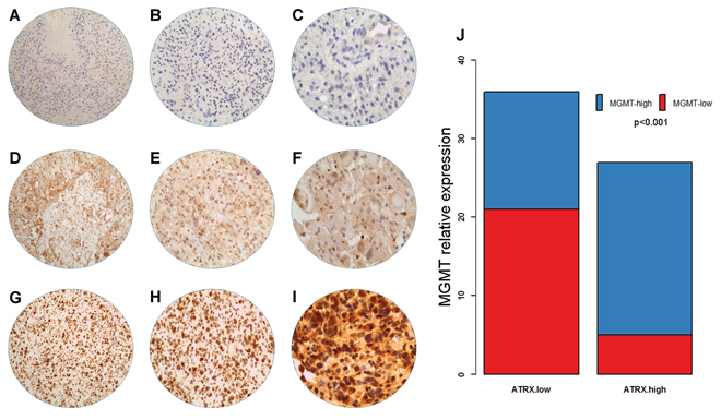 MGMT expression by immunohistochemical staining.