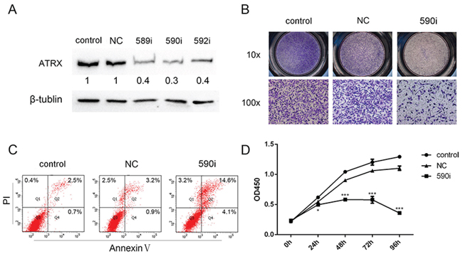 The knockdown of ATRX affected migration, apoptosis and proliferation of LN229 cells.