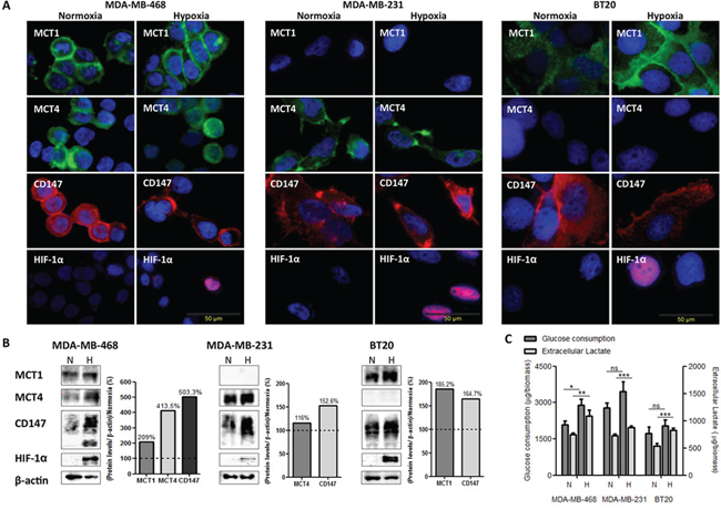The metabolic profile of breast cancer cell lines is modulated by hypoxia.