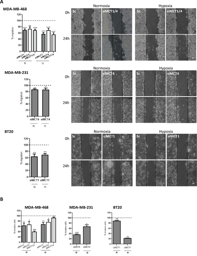 MCT knockdown decreases in vitro cell migration and invasion.