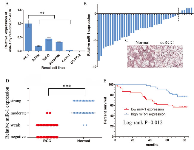 Downregulation of miR-1 in ccRCC correlated with poor patient survival.