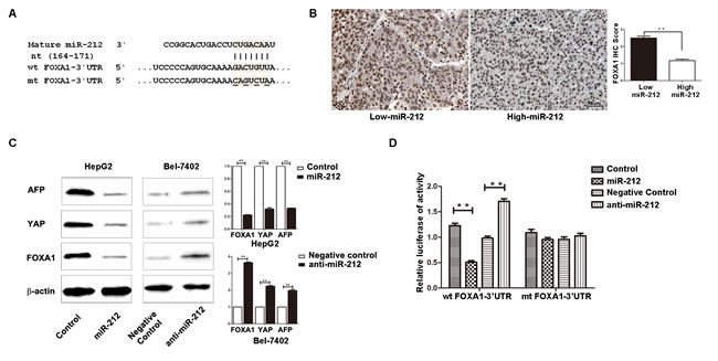 FOXA1 is a direct downstream target of miR-212 in HCC.