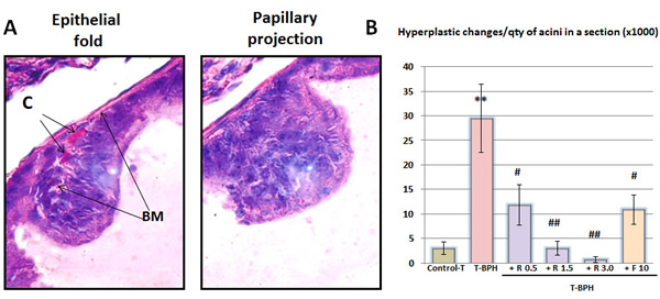 Histological hyperplastic changes in the prostate.