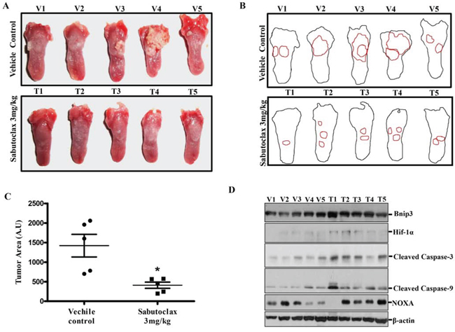 Sabutoclax inhibits tumor growth in a carcinogen-induced tongue OSCC mouse model.