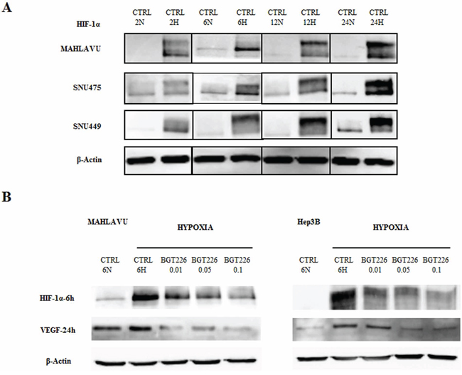 BGT226 and the modulation of HIF-1α and VEGF in HCC cells in hypoxia conditions.