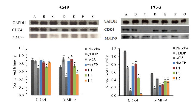 Western blotting analysis of CDK4 and MMP-9 levels.