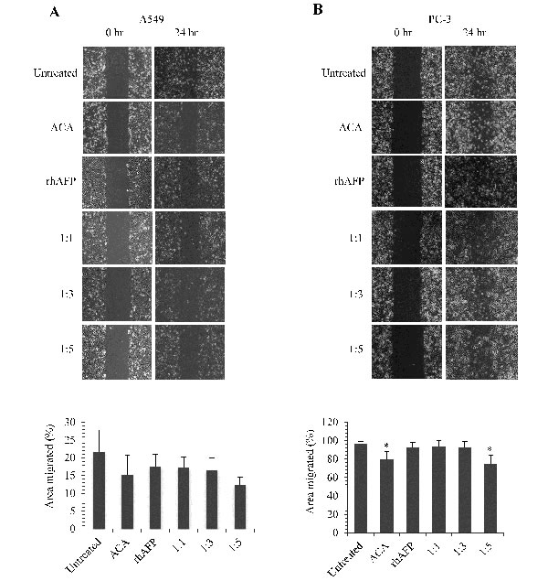 The inhibition effects of ACA stand alone, rhAFP stand alone, and rhAFP/ACA complex on cell migration.