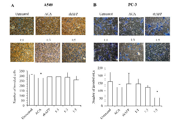The inhibition effects of ACA stand alone, rhAFP stand alone, and rhAFP/ACA complex on cell invasion.