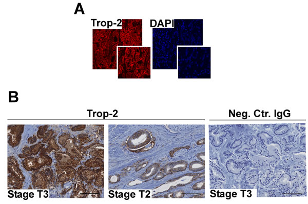 Trop-2 localization and expression in PCa.