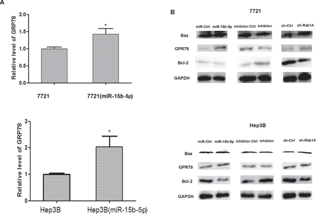 Overexpression of miR-15b-5p induces endoplasmic reticulum stress and results apoptotic death in human hepatocellular carcinoma.