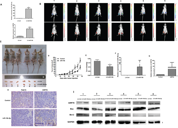 Overexpression of miR-15b-5p induces ERS and apoptotic death in HCC cells.