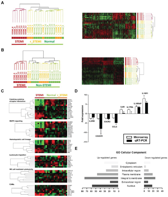 Large-scale gene expression changes are associated the pathogenesis of STEMI.