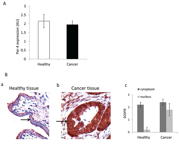 Presence of PAR-4 in healthy and cancer tissues.