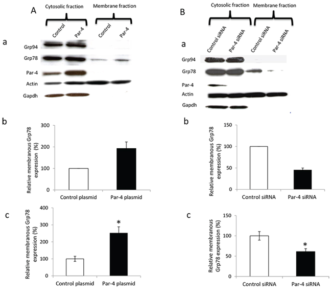 Effect of PAR-4 expression on GRP78 relocation in ovarian cancer cell surface.