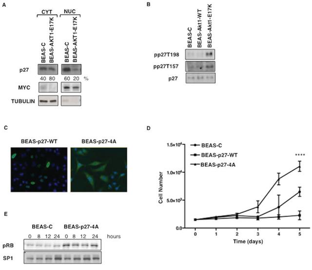 Mutant AKT1-E17K promotes cytoplasmic delocalization of p27.